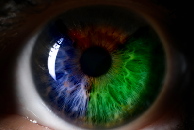 Does Your Pharmacy have a Color Blind Staff Member? Windows 10 Can Help.